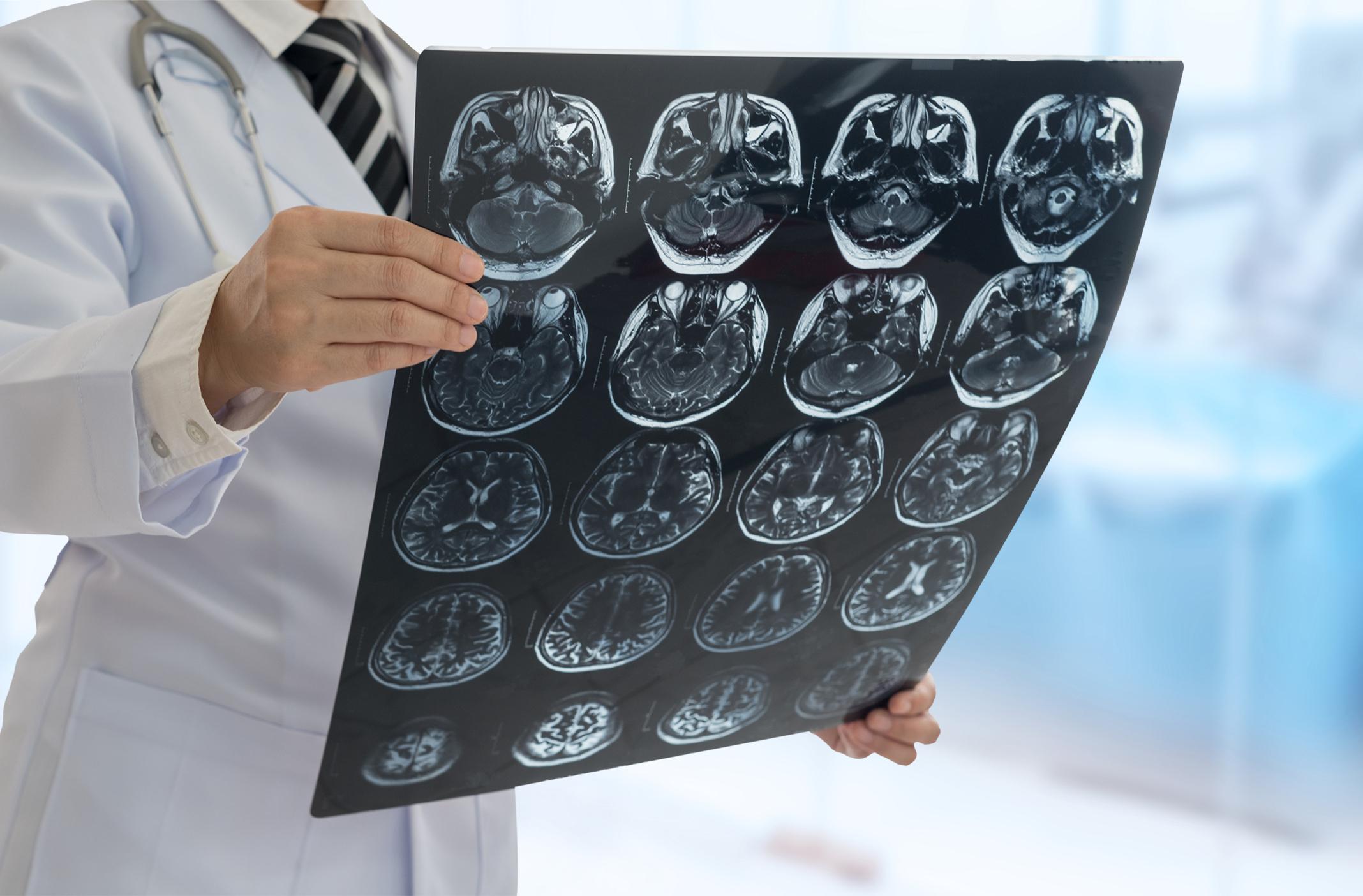 neurologia roma