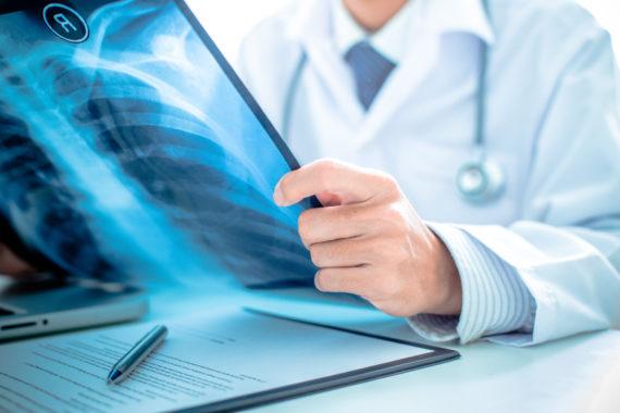 pneumologia roma